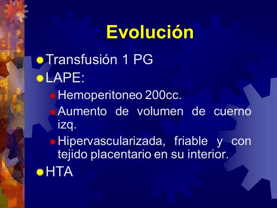 Evolución Transfusión 1 PG LAPE: HTA Hemoperitoneo 200cc.
