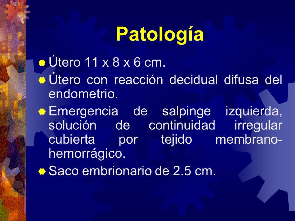 Patología Útero 11 x 8 x 6 cm. Útero con reacción decidual difusa del endometrio.