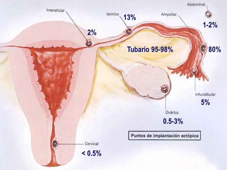 13% 1-2% 2% Tubario 95-98% 80% 5% 0.5-3% < 0.5%