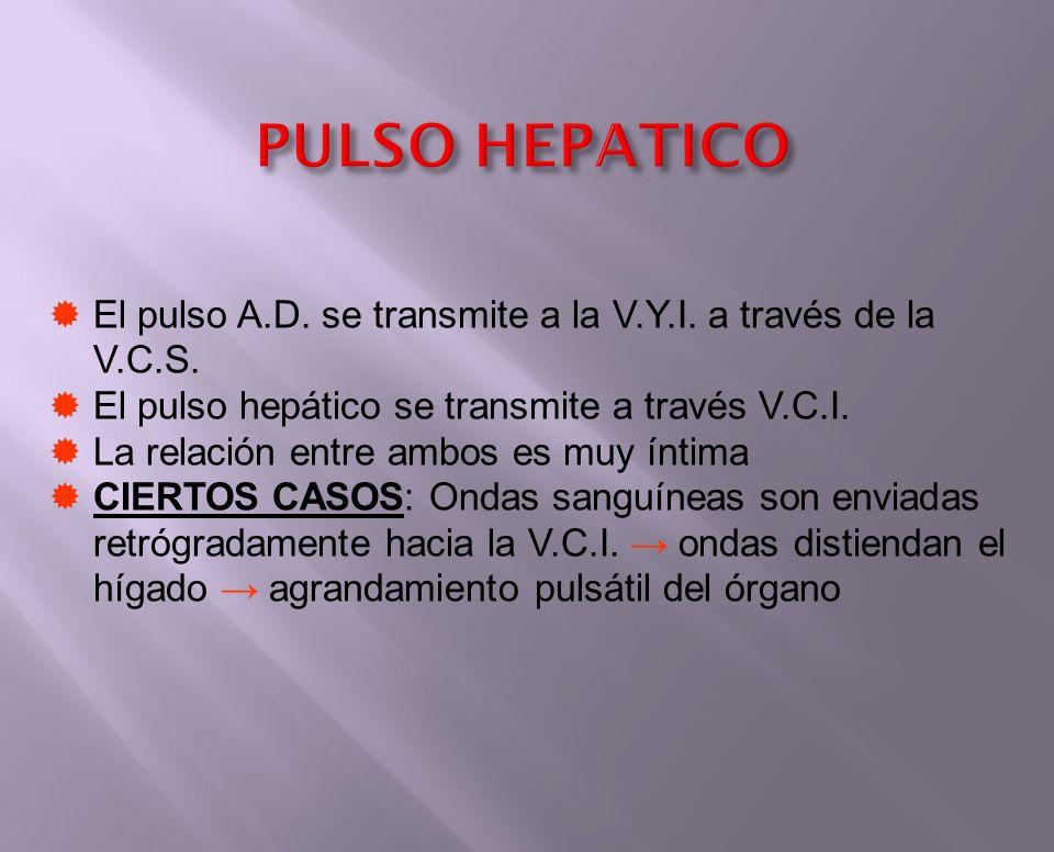 PULSO HEPATICO El pulso A.D. se transmite a la V.Y.I. a través de la V.C.S. El pulso hepático se transmite a través V.C.I.