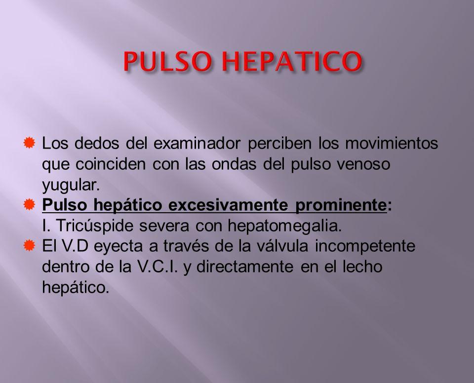 PULSO HEPATICO Los dedos del examinador perciben los movimientos que coinciden con las ondas del pulso venoso yugular.