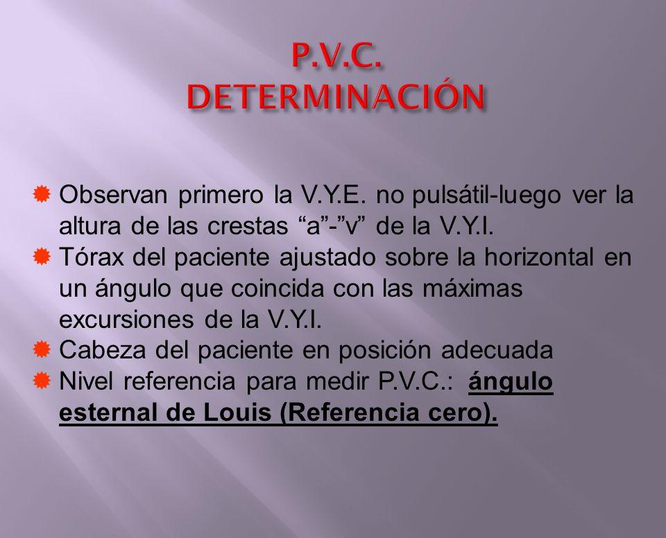 P.V.C. DETERMINACIÓN Observan primero la V.Y.E. no pulsátil-luego ver la altura de las crestas a - v de la V.Y.I.