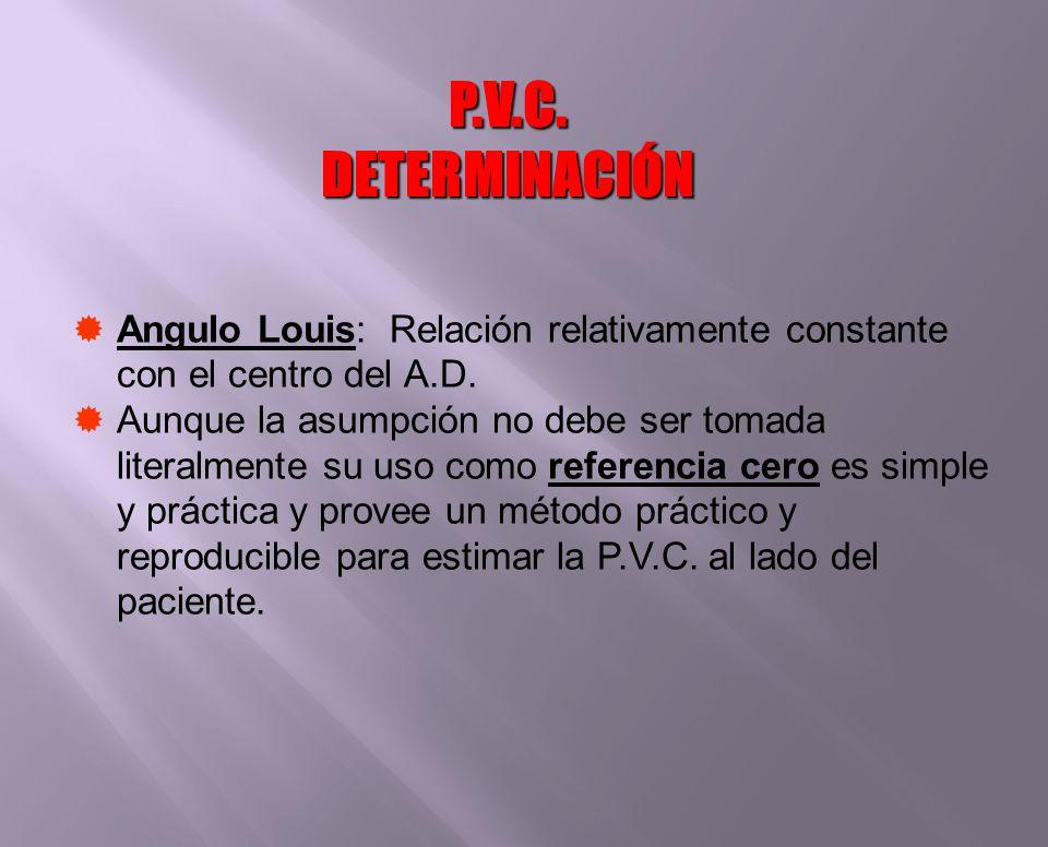 P.V.C. DETERMINACIÓN Angulo Louis: Relación relativamente constante con el centro del A.D.