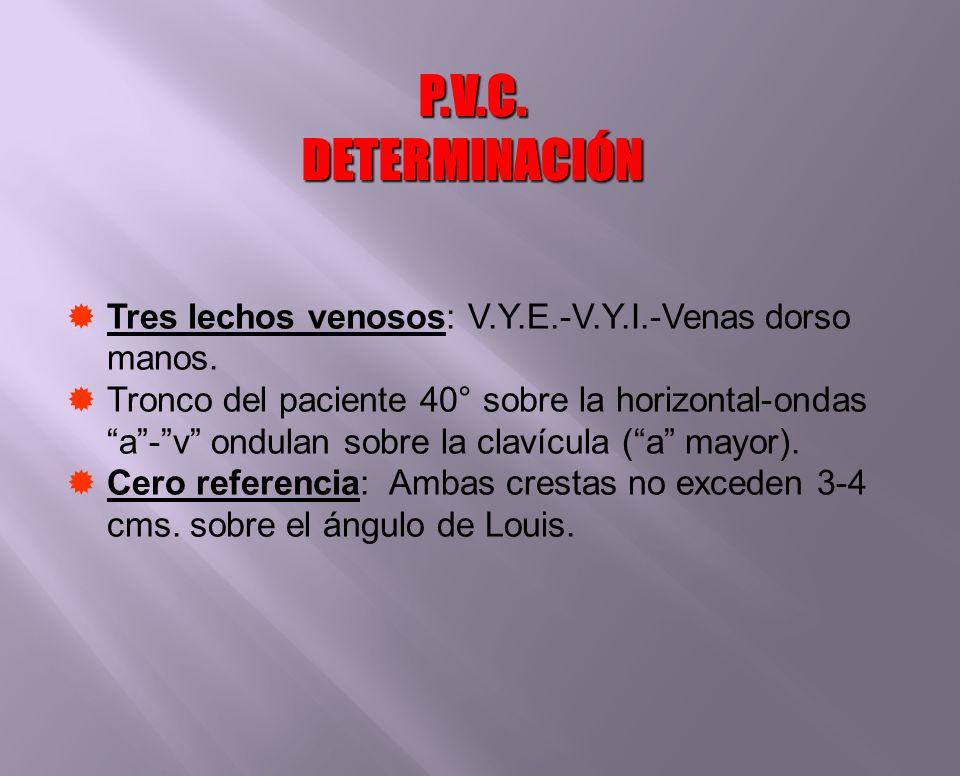 P.V.C. DETERMINACIÓN Tres lechos venosos: V.Y.E.-V.Y.I.-Venas dorso manos.