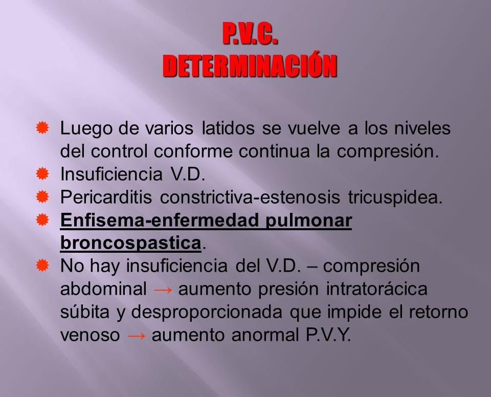 P.V.C. DETERMINACIÓNLuego de varios latidos se vuelve a los niveles del control conforme continua la compresión.