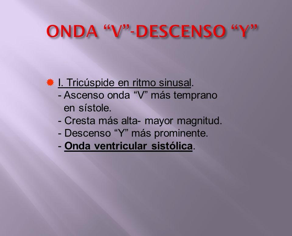 ONDA V -DESCENSO Y I. Tricúspide en ritmo sinusal.