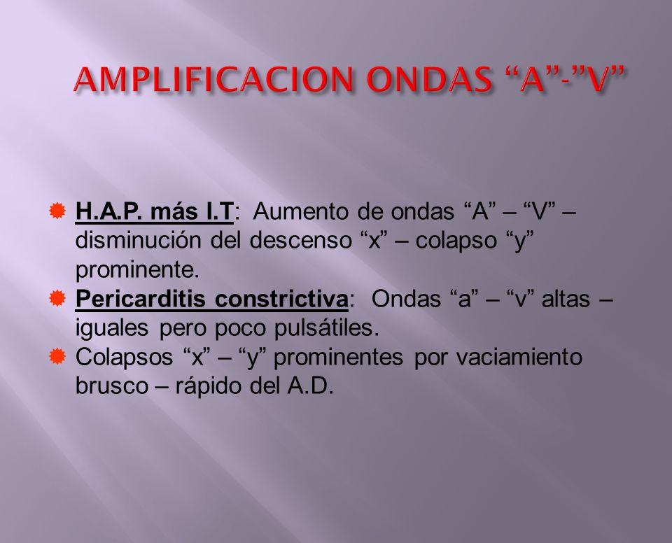 AMPLIFICACION ONDAS A - V
