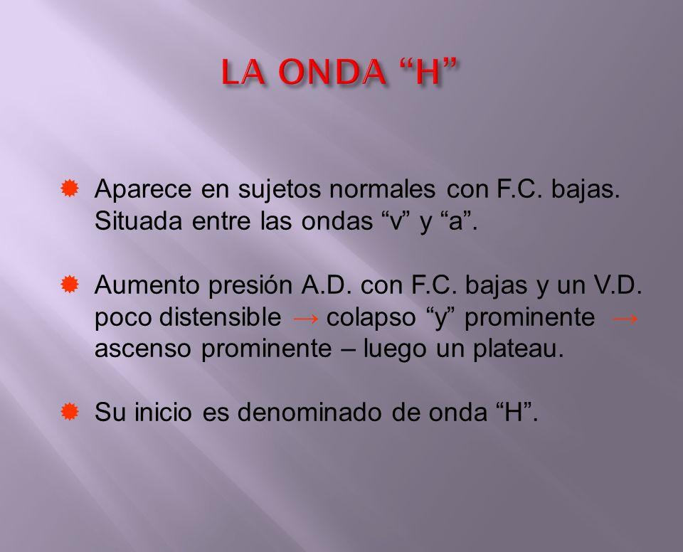 LA ONDA H Aparece en sujetos normales con F.C. bajas. Situada entre las ondas v y a .
