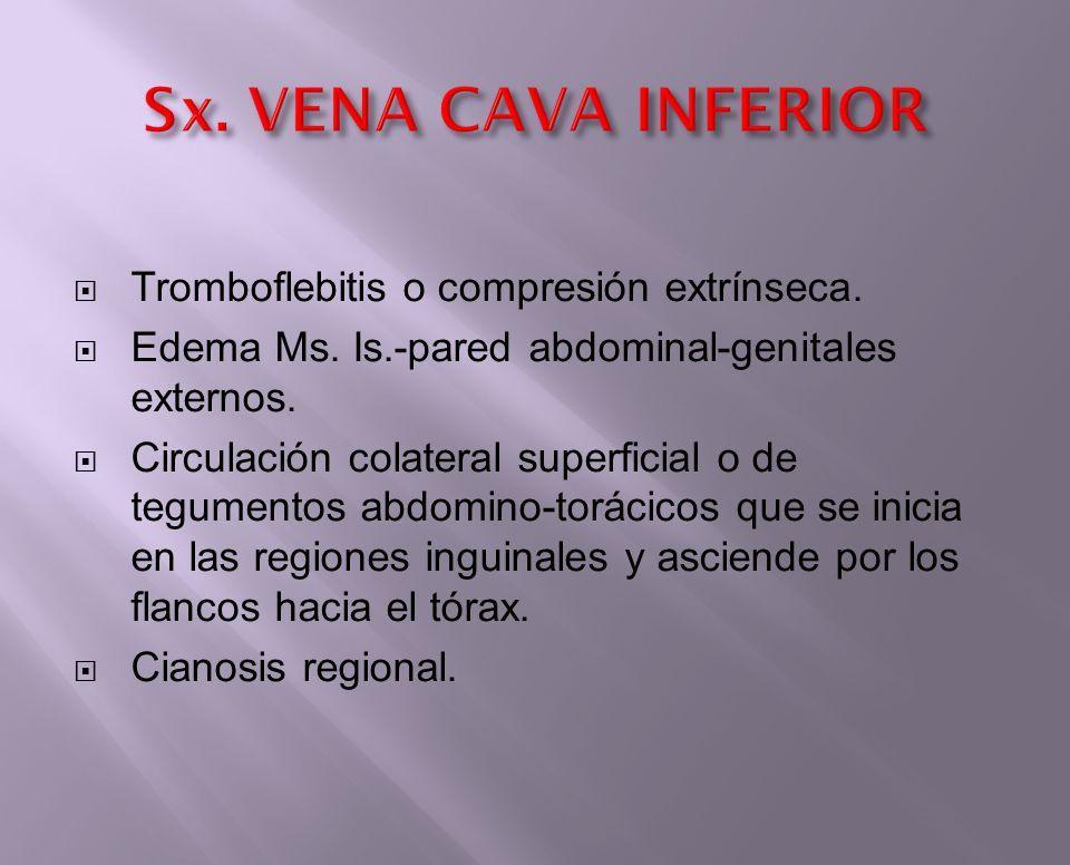 Sx. VENA CAVA INFERIOR Tromboflebitis o compresión extrínseca.