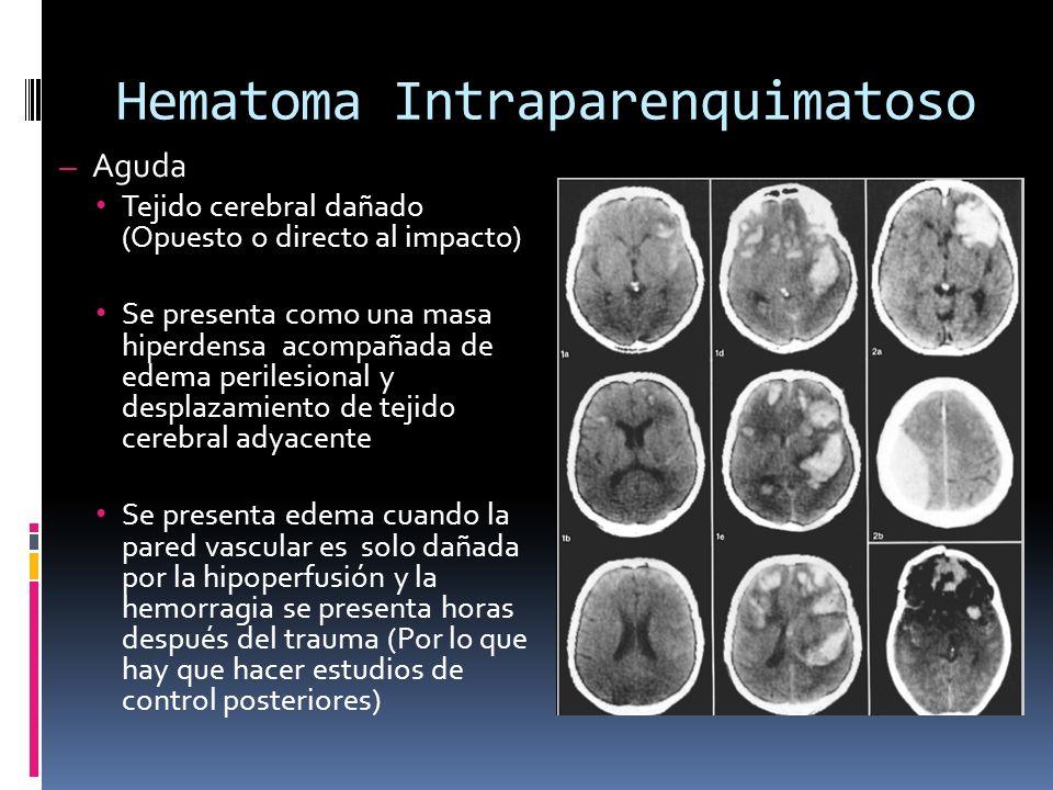 Hematoma Intraparenquimatoso