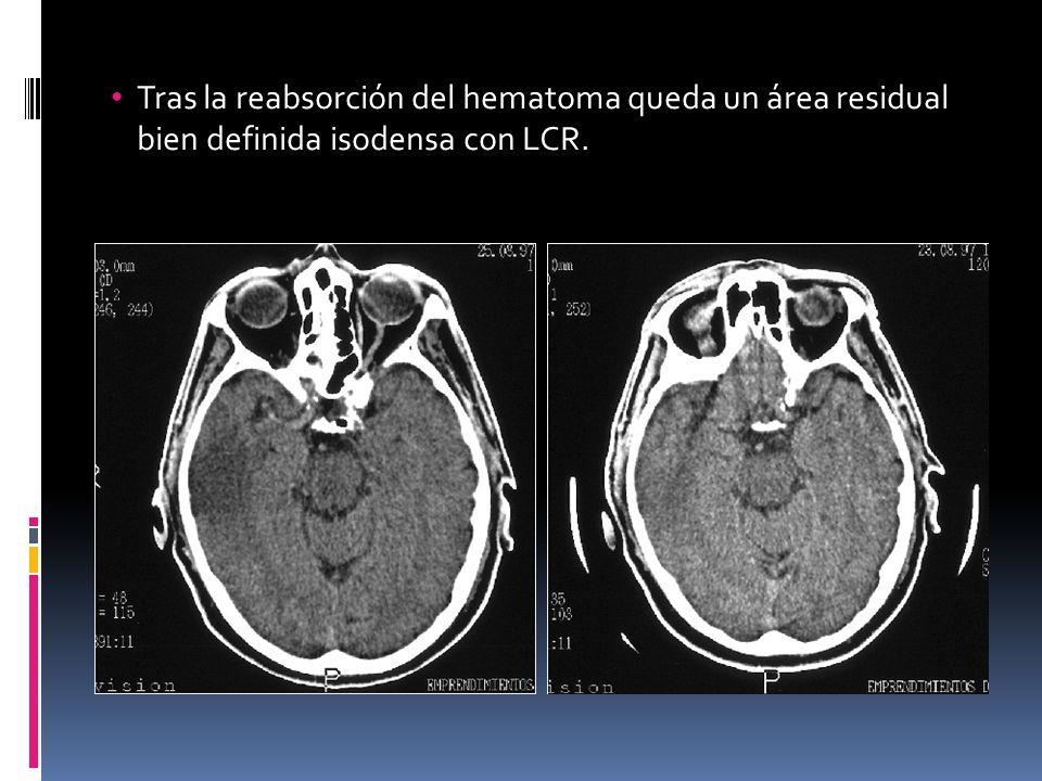 Tras la reabsorción del hematoma queda un área residual bien definida isodensa con LCR.