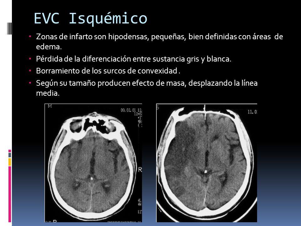 EVC Isquémico Zonas de infarto son hipodensas, pequeñas, bien definidas con áreas de edema.