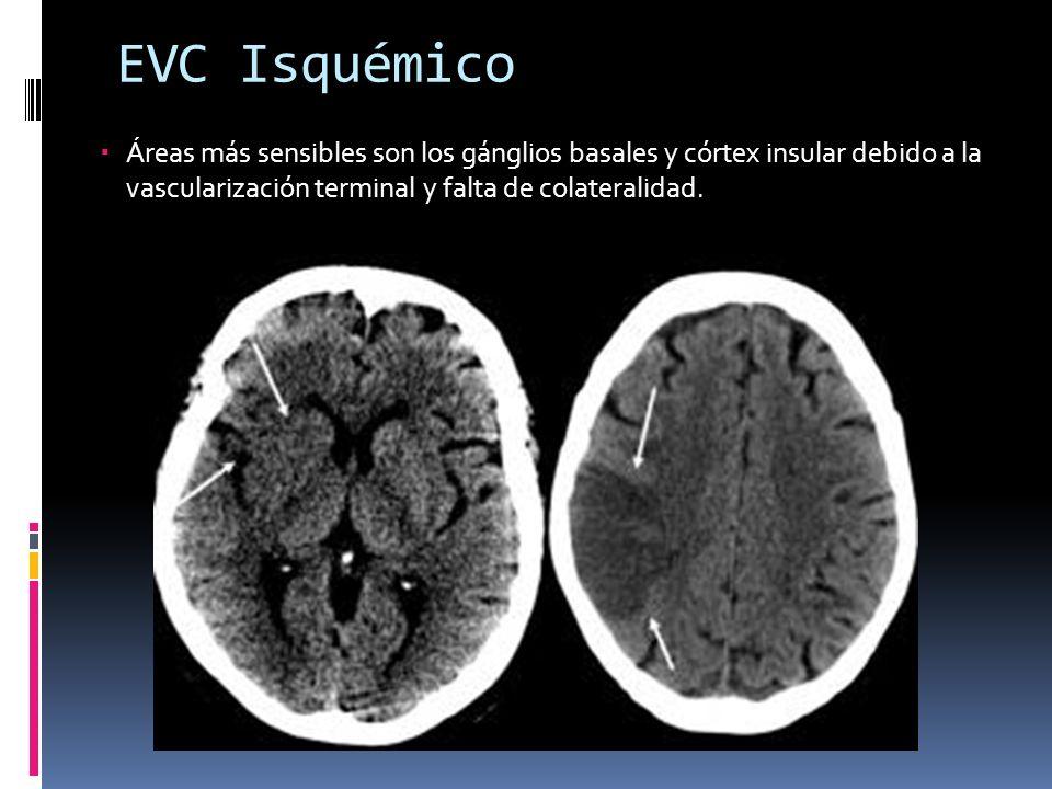 EVC Isquémico Áreas más sensibles son los gánglios basales y córtex insular debido a la vascularización terminal y falta de colateralidad.