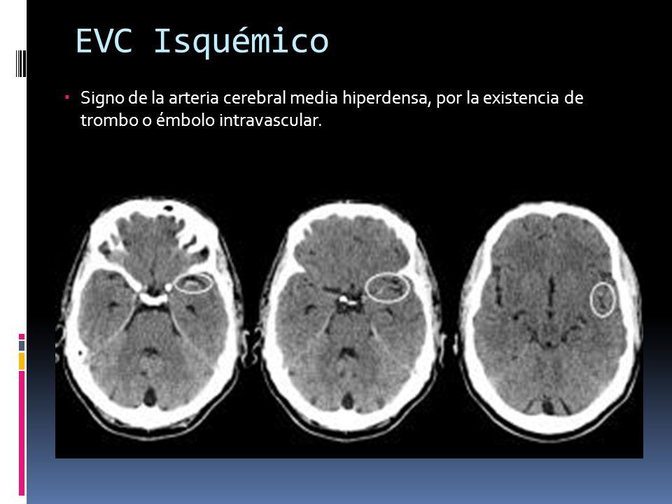 EVC IsquémicoSigno de la arteria cerebral media hiperdensa, por la existencia de trombo o émbolo intravascular.