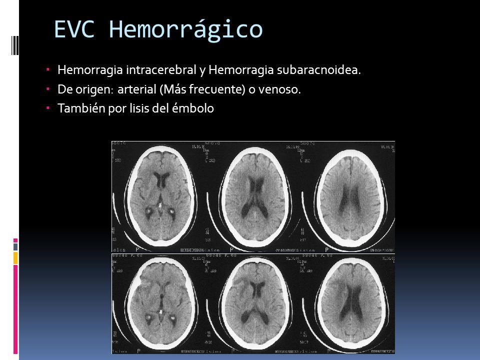 EVC Hemorrágico Hemorragia intracerebral y Hemorragia subaracnoidea.