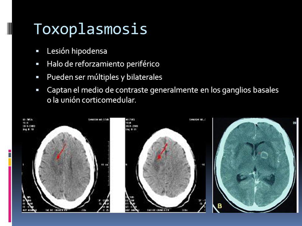 Toxoplasmosis Lesión hipodensa Halo de reforzamiento periférico