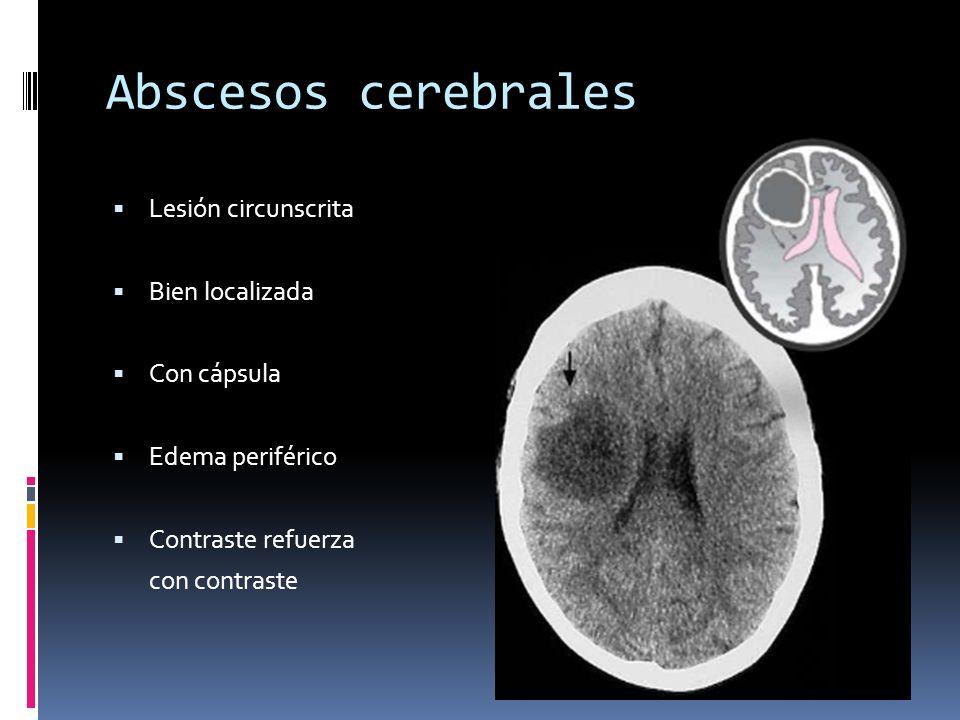 Abscesos cerebrales Lesión circunscrita Bien localizada Con cápsula