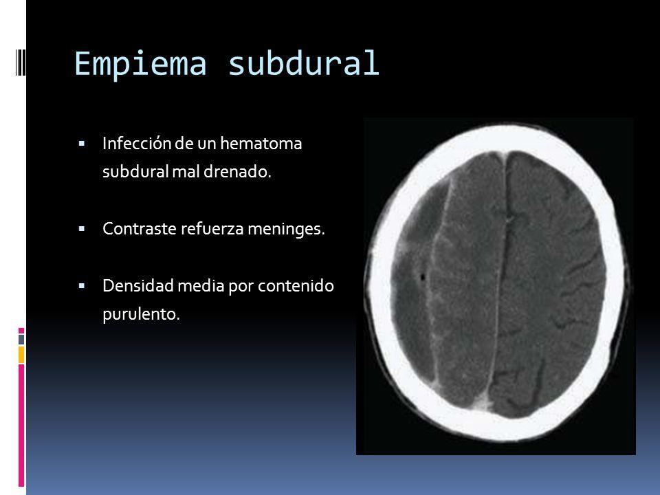 Empiema subdural Infección de un hematoma subdural mal drenado.