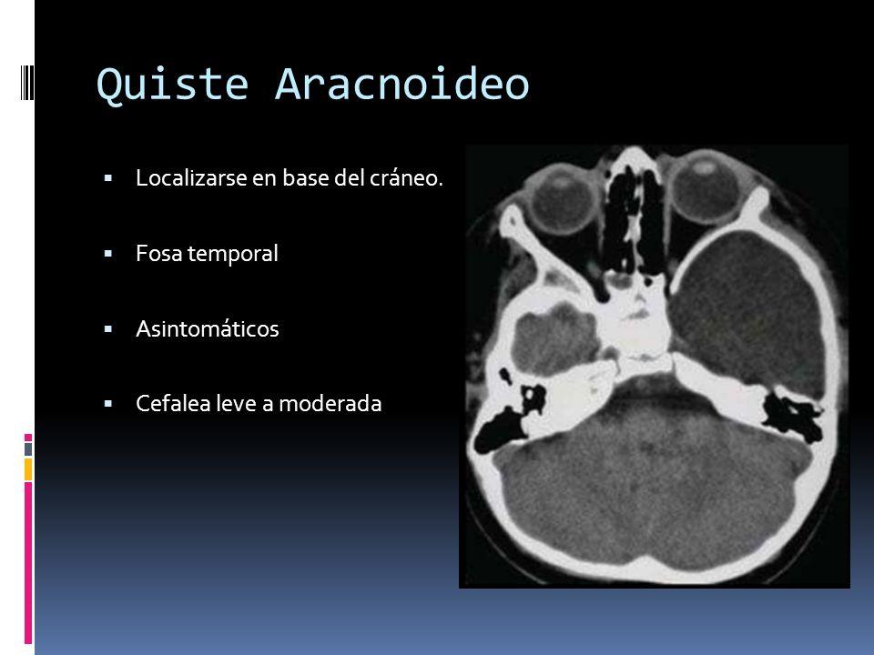 Quiste Aracnoideo Localizarse en base del cráneo. Fosa temporal