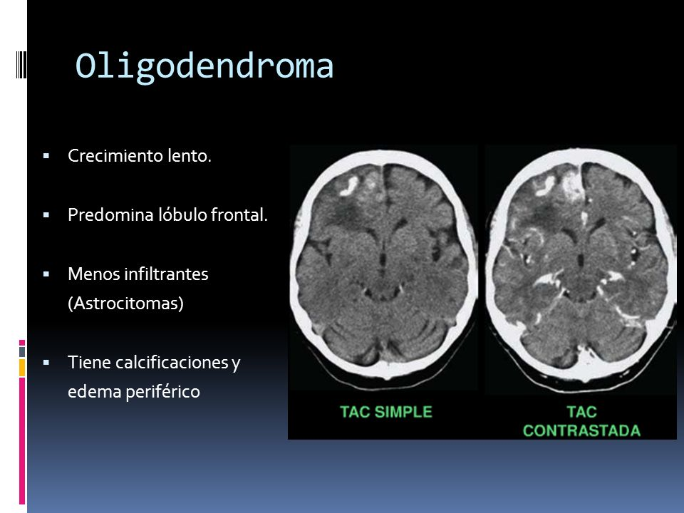 Oligodendroma Crecimiento lento. Predomina lóbulo frontal.