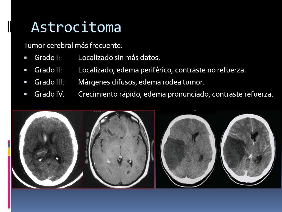 Astrocitoma Tumor cerebral más frecuente.