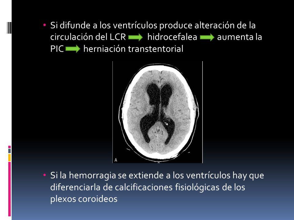 Si difunde a los ventrículos produce alteración de la circulación del LCR hidrocefalea aumenta la PIC herniación transtentorial