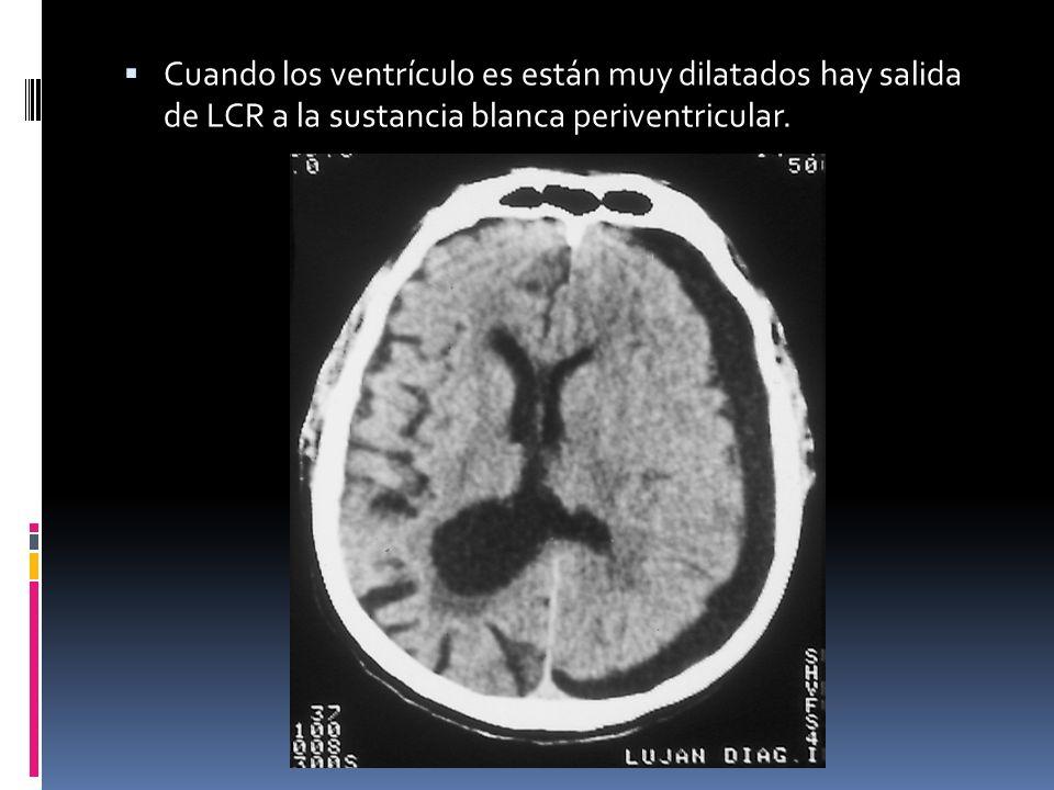 Cuando los ventrículo es están muy dilatados hay salida de LCR a la sustancia blanca periventricular.
