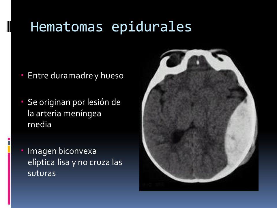 Hematomas epidurales Entre duramadre y hueso