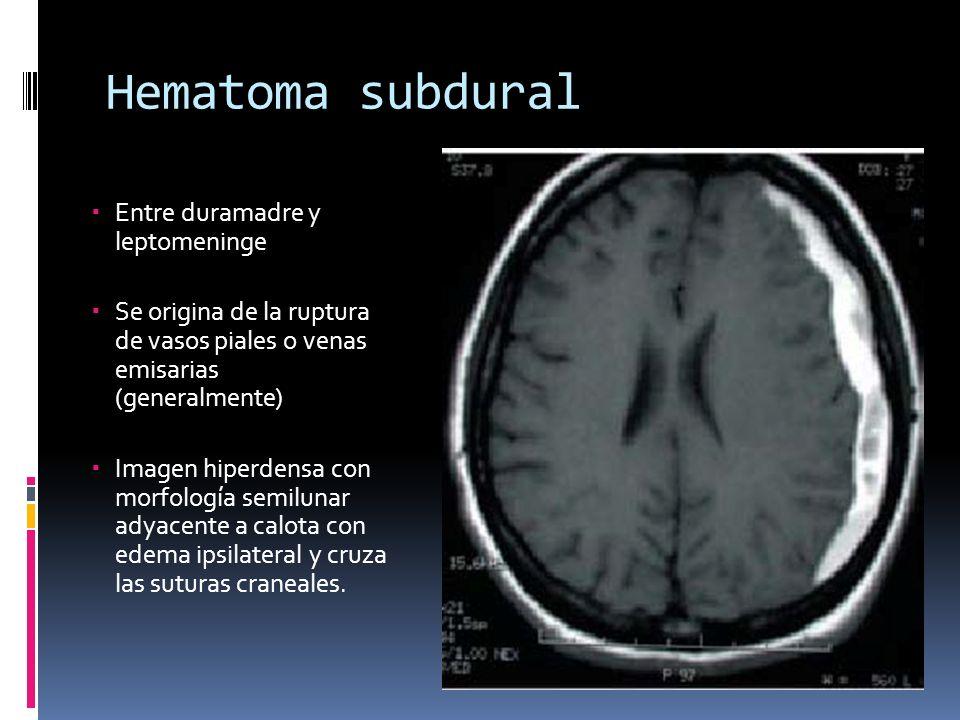 Hematoma subdural Entre duramadre y leptomeninge