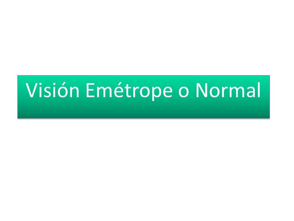 Visión Emétrope o Normal
