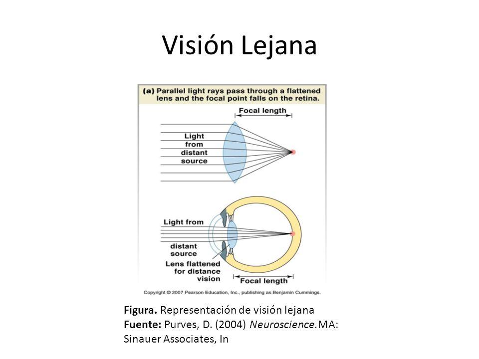 Visión Lejana Figura. Representación de visión lejana