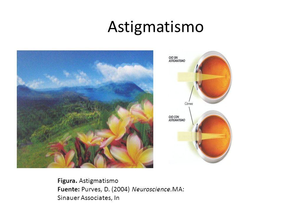 Astigmatismo Figura. Astigmatismo