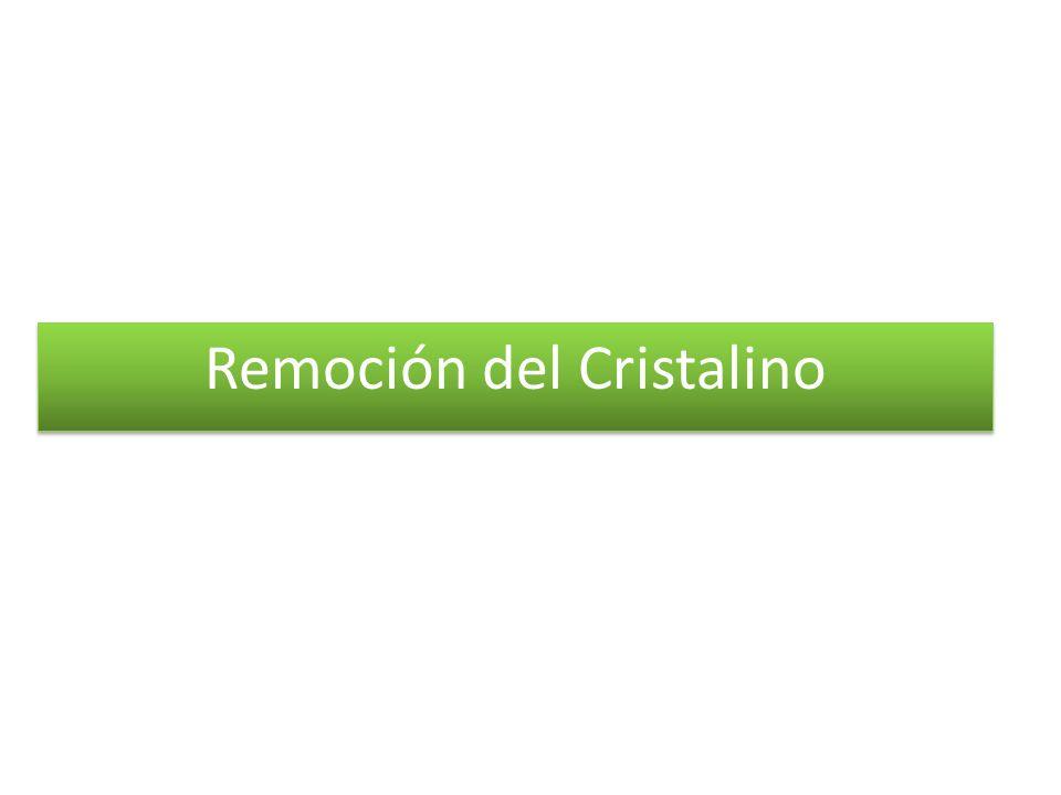 Remoción del Cristalino