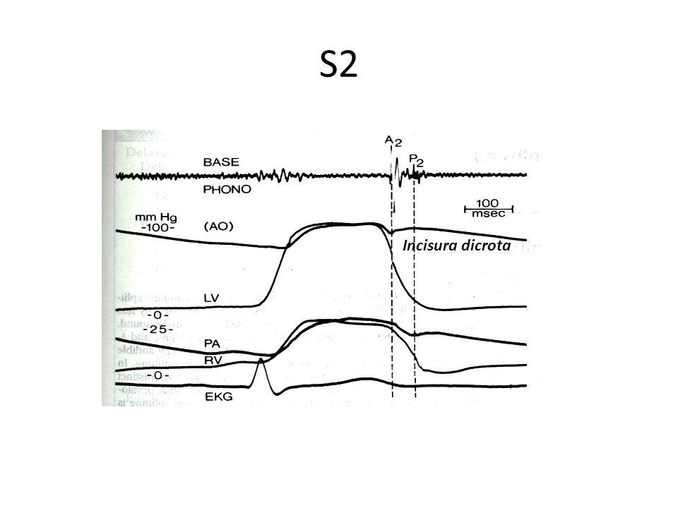 S2 Incisura dicrota A2 y p2 coinciden con la incisura dicrota pulmonar y aortica