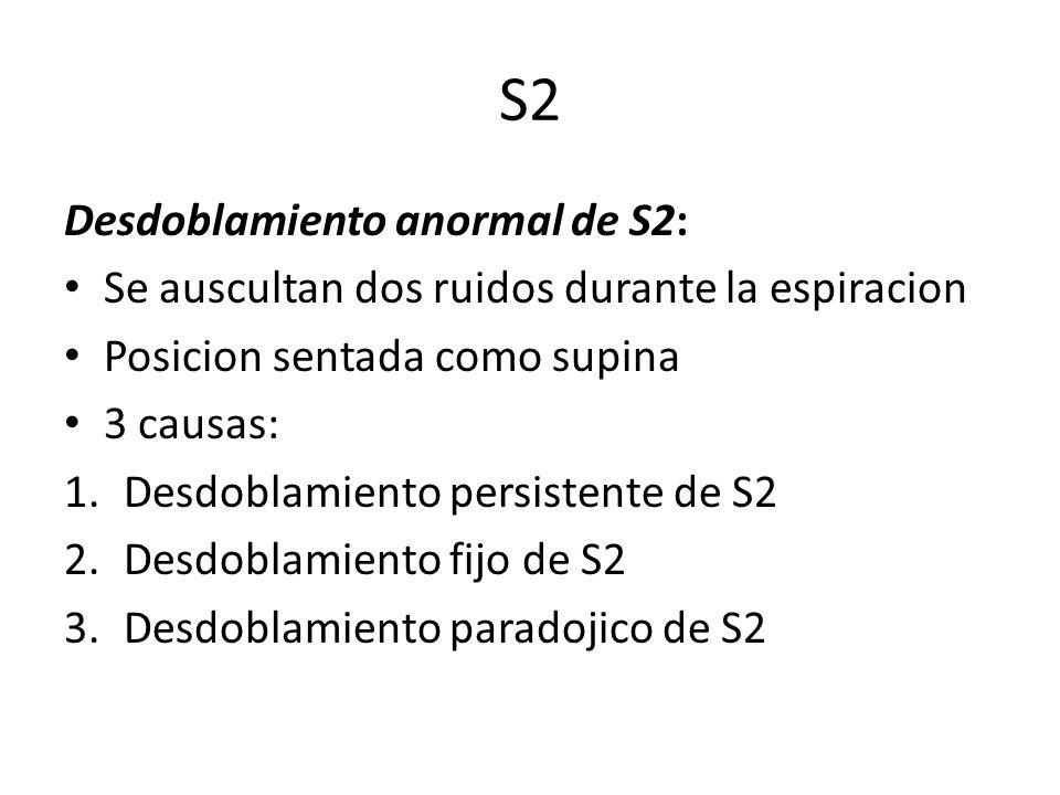 S2 Desdoblamiento anormal de S2: