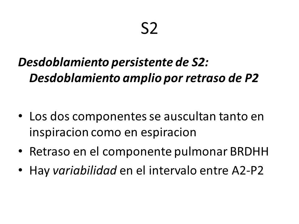 S2 Desdoblamiento persistente de S2: Desdoblamiento amplio por retraso de P2.