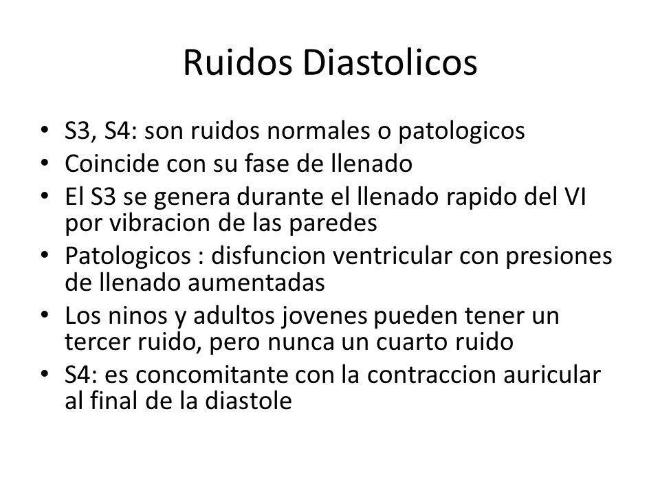 Ruidos Diastolicos S3, S4: son ruidos normales o patologicos