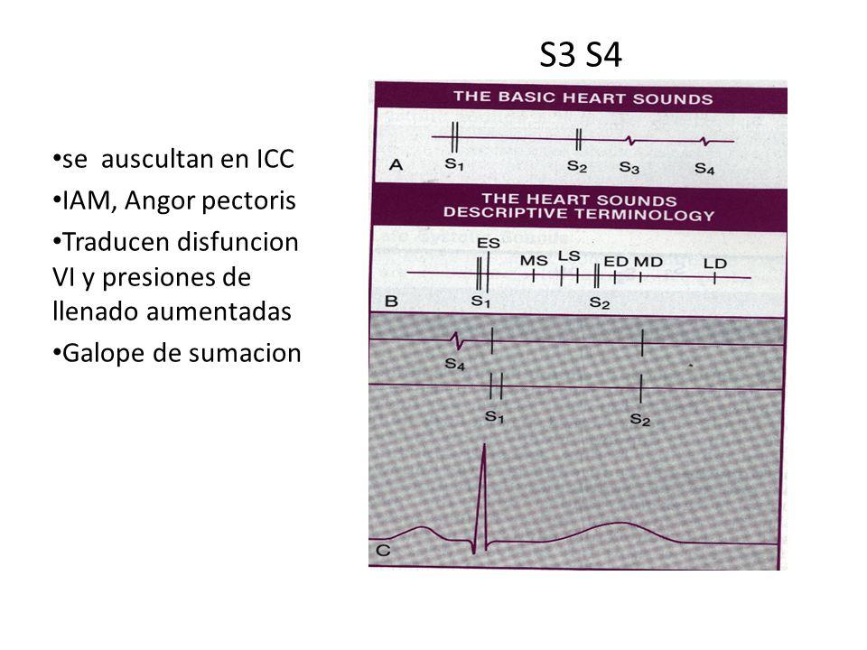 S3 S4 se auscultan en ICC IAM, Angor pectoris