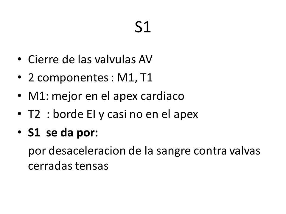 S1 Cierre de las valvulas AV 2 componentes : M1, T1
