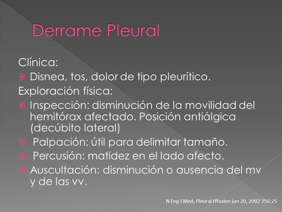 Derrame Pleural Clínica: Exploración física: