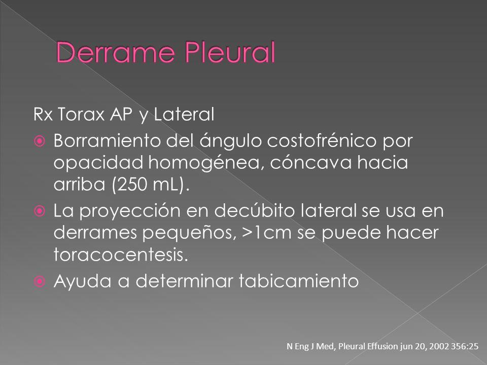 Derrame Pleural Rx Torax AP y Lateral