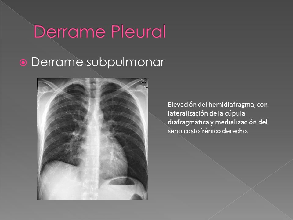 Derrame Pleural Derrame subpulmonar