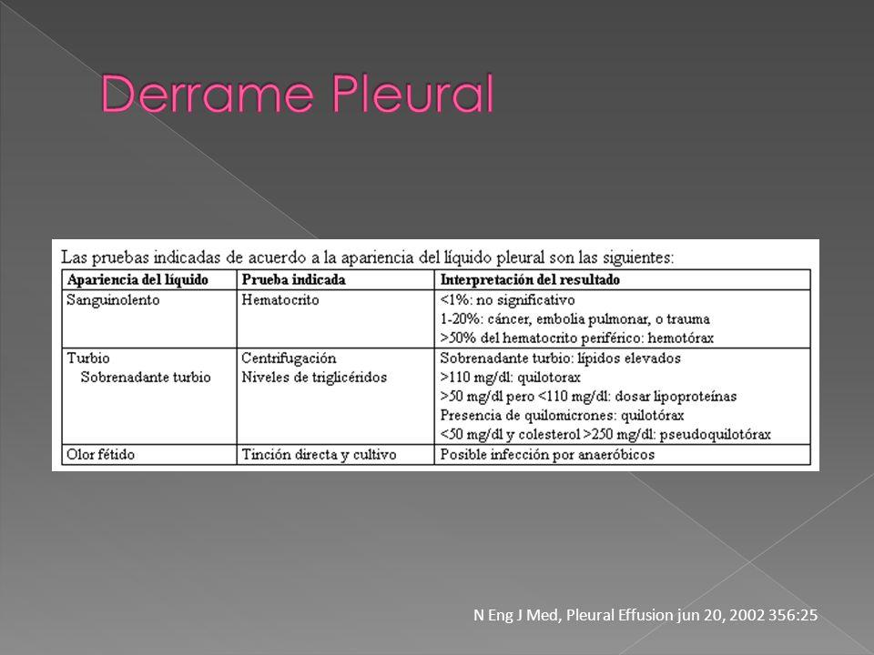 Derrame Pleural N Eng J Med, Pleural Effusion jun 20, 2002 356:25