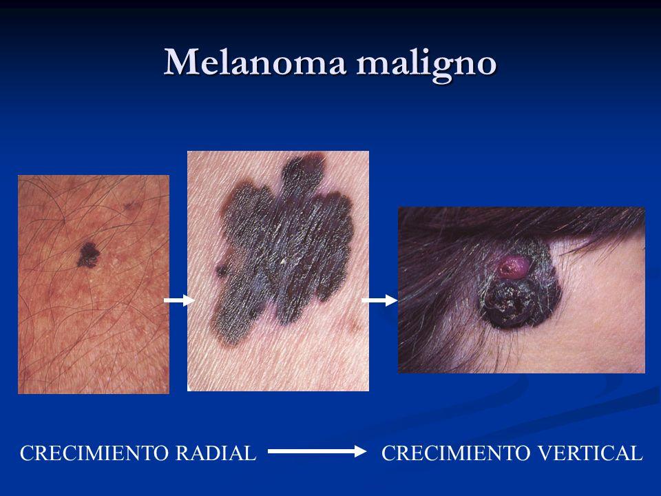 Melanoma maligno CRECIMIENTO RADIAL CRECIMIENTO VERTICAL