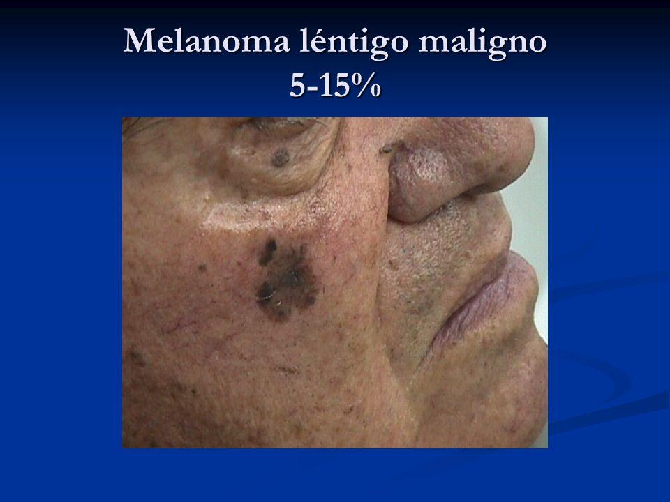 Melanoma léntigo maligno 5-15%