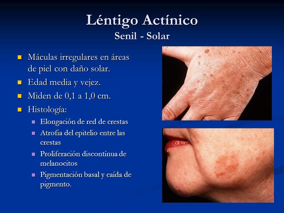 Léntigo Actínico Senil - Solar