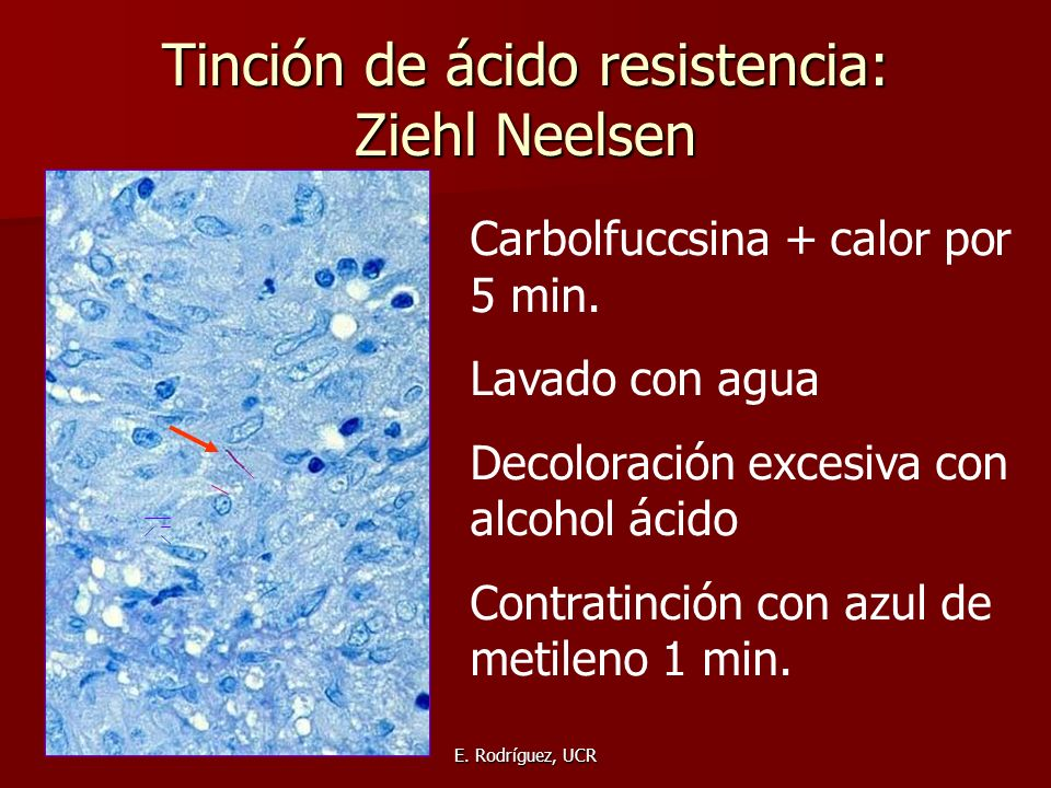 Tinción de ácido resistencia: Ziehl Neelsen