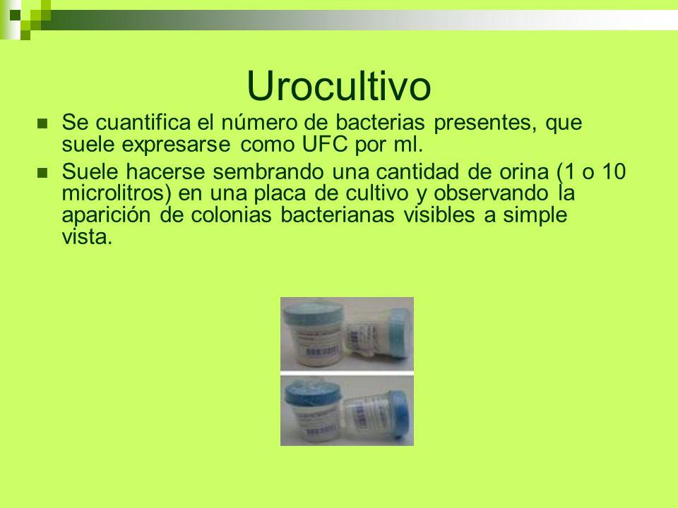 Urocultivo Se cuantifica el número de bacterias presentes, que suele expresarse como UFC por ml.