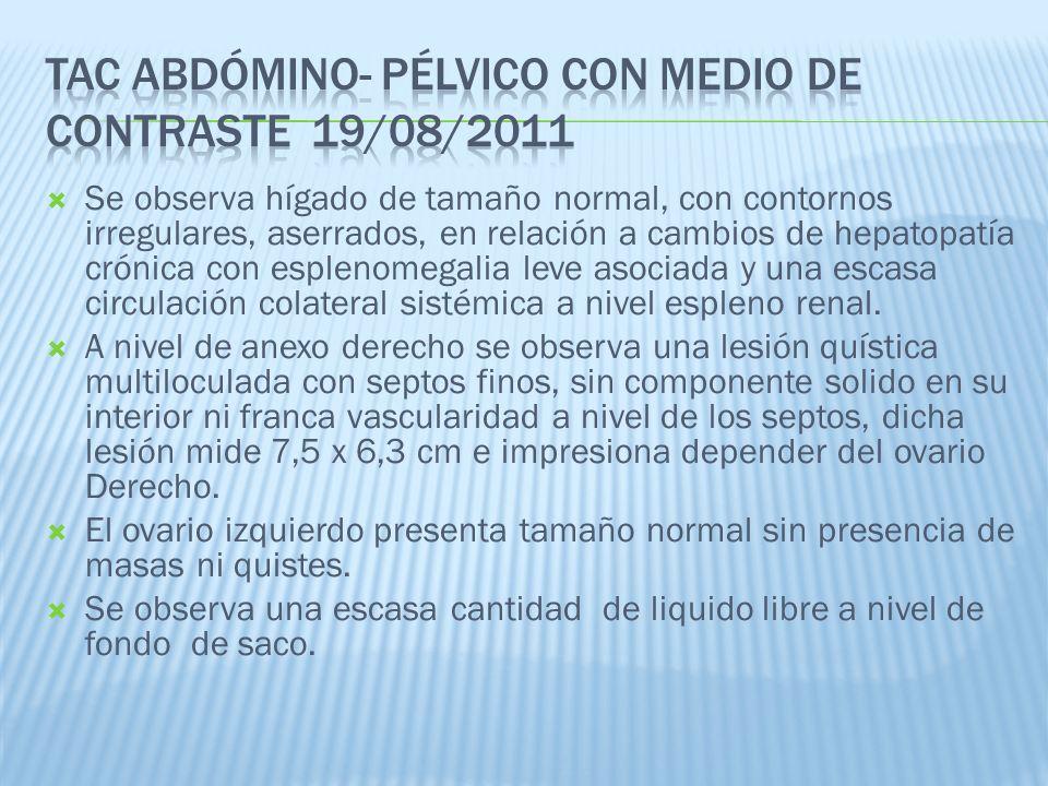 TAC abdómino- pélvico con medio de contraste 19/08/2011
