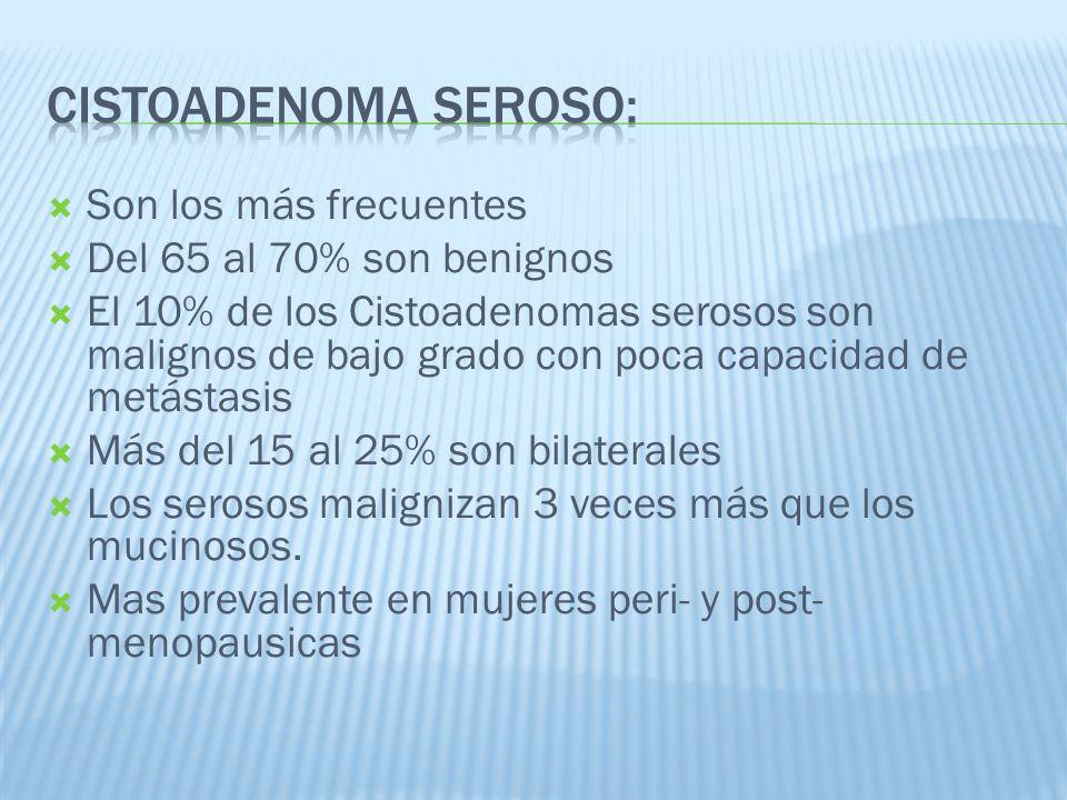 Cistoadenoma Seroso: Son los más frecuentes Del 65 al 70% son benignos